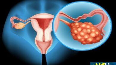661638 195 390x220 - علائم سرطان تخمدان و راه های درمان آن